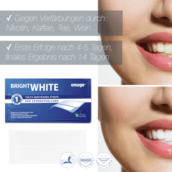 onuge bright whitestrips before & after